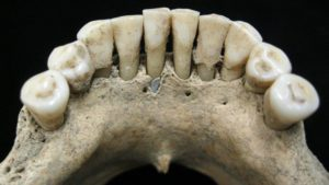 Mysterious blue pigment in medieval woman's teeth gives scientists 'bo...